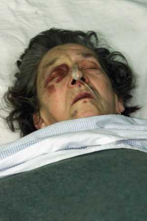 Photo of Professor's mother in law, lying in coma after the attack