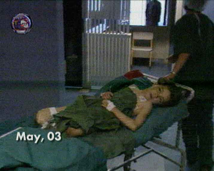 A Serbian Girl wounded in a NATO attack near Kraljevo